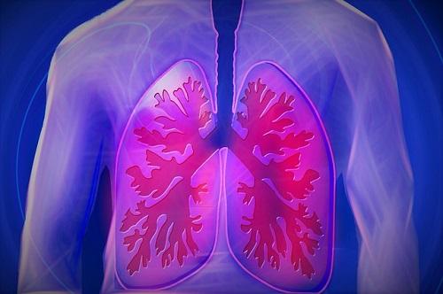Kronik Obstrüktif Akciğer Hastalığı(KOAH)